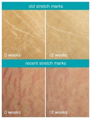 Freezeframe Stretch Mark Eraser Before After